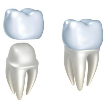 bigstock Dental crowns and tooth isola