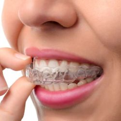 bigstock-Woman-Wearing-Orthodontic-Sili