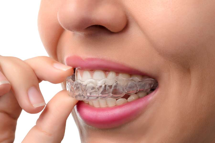 If you think you might need to straighten your teeth for a better smile, but wearing metal braces does not sound appealing, Invisalign may be the right choice for you.