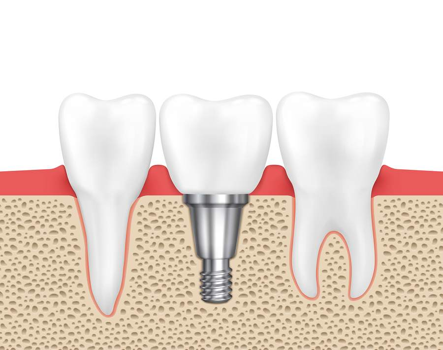 bigstock dental implants