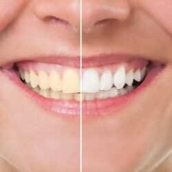 bigstock-Before-And-After-Whitening