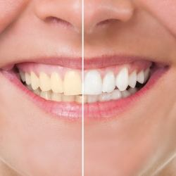 Over time your teeth will start losing their brightness due to many reasons. The most common are poor dental hygiene, tobacco use, drinking liquids such as coffee, tea, and red wine.