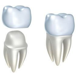 bigstock-Dental-crowns-and-tooth-isola