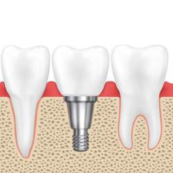 Dental implants are an effective and permanent solution for replacing missing teeth.