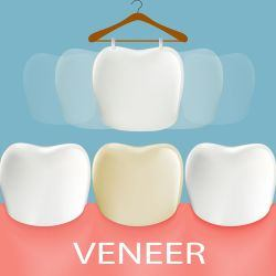 Veneers are thin, custom-made shells of porcelain designed to bond to the front of the teeth in order to improve the appearance of your smile.